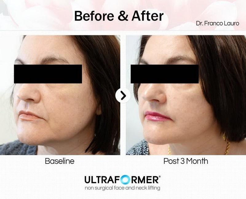 HIFU Facial & Body Contouring Treatments